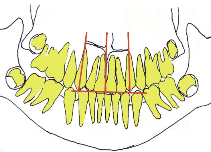 Рис. 4в. Контуры, скопированные с ортопантомограмм челюстей, полученных в динамике: 12 лет 1 месяц — достигнуты множественные окклюзионные контакты между зубными рядами.