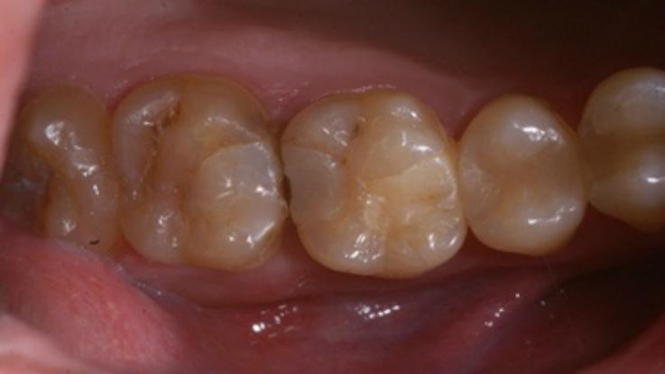 Рис. 1. Зубы до лечения.