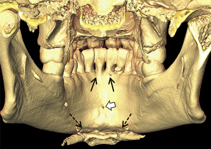 Рис. 1. Язычные каналы челюсти: верхние альвеолярные паросимфизальные (черные стрелки), срединный язычный канал (белая стрелка), нижние паросимфизальные каналы (черные стрелки пунктиром).