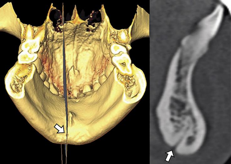 Рис. 2. Нижние паросимфизальные каналы, аксиальный срез.
