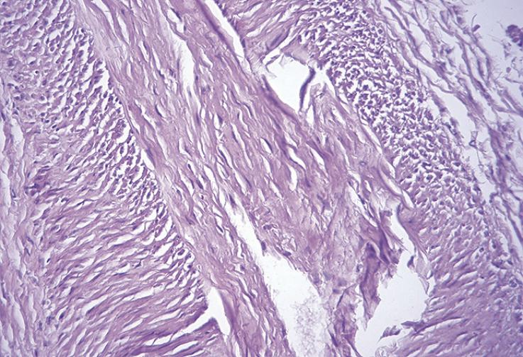 Рис. 9. Продольно срезанный ствол. «Сердечник» в центре состоит из продольно-коллагеновых волокон и фибробластов, вокруг нервные волокна, шванновские и другие клетки, срезанные в разных плоскостях. Окраска гематоксилином и эозином, увеличение Х200.