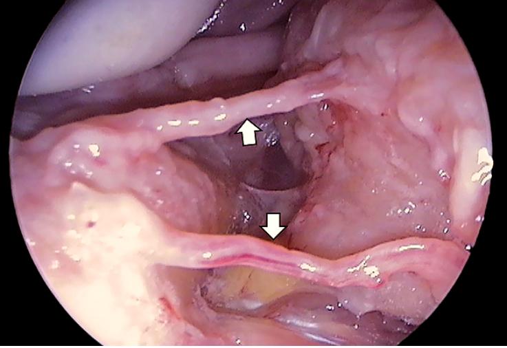 Рис. 12. Терминальные нервные окончания язычного нерва в условиях беззубого альвеолярного отростка.