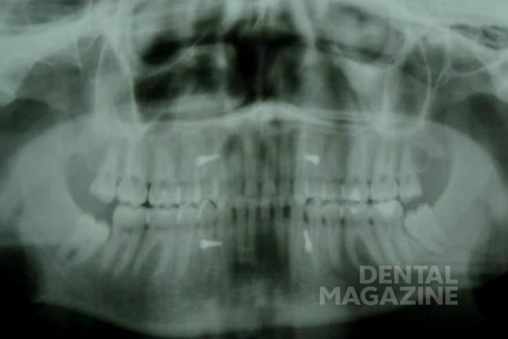 Рис. 3. Иммобилизация нижней челюсти с помощью внутрикостных имплантатов фиксаторов и эластичных колец.
