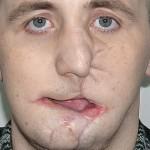 Эндопротезирование нижней челюсти клинический пример