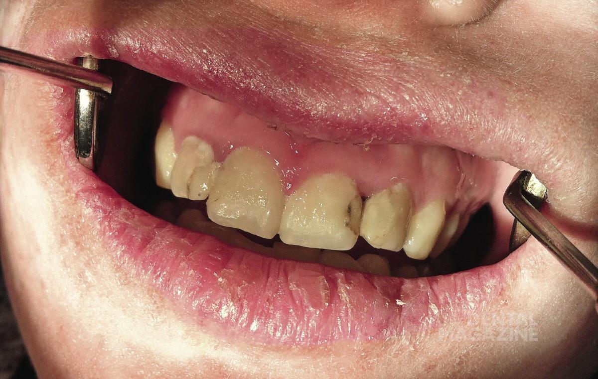 Как лечить воспаление десен на нижнем челюстей