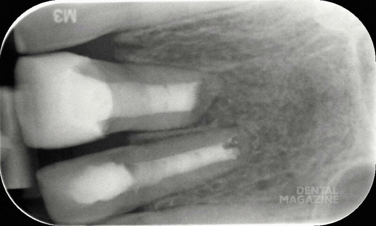 Рис. 25. Рентгенограмма после проведения резекции верхушки корня.