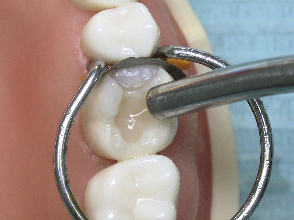 Современные адгезивные системы в стоматологии