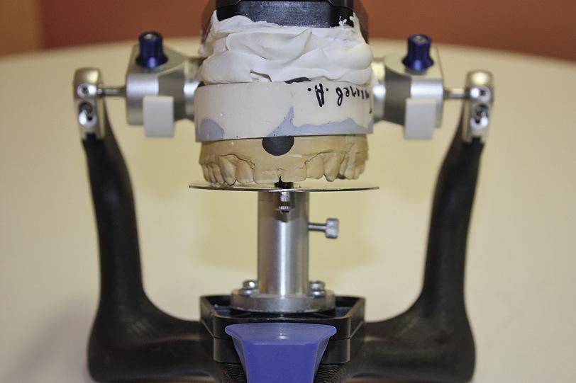 Рис. 3. Горизонтальное положение модели верхней челюсти, модель загипсована по HIP-плоскости, которая параллельна камперовской.