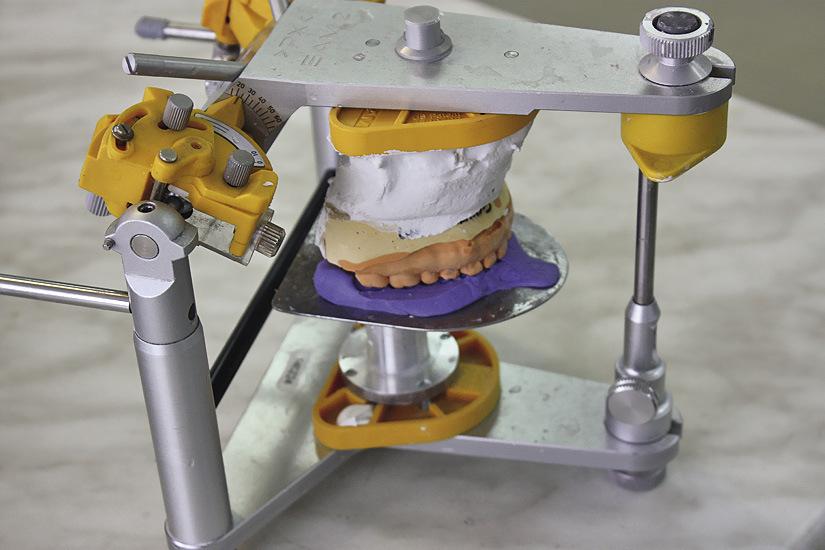 Рис. 5. Модель верхней челюсти, загипсованная в артикулятор с применением силиконового регистрата и столика.