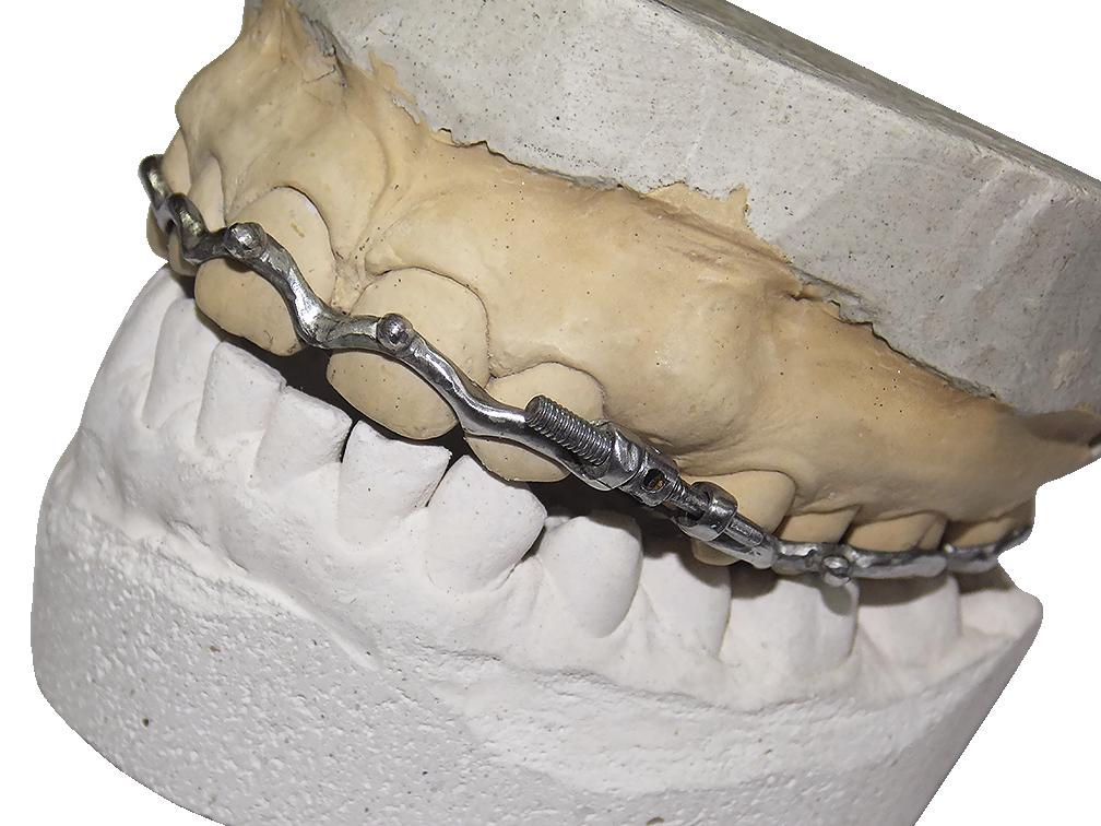 Рис. 2. Ретенированный 23 зуб. Припасованный на модели аппарат для выведения ретенированных зубов в случаях нехватки места в зубном ряду.