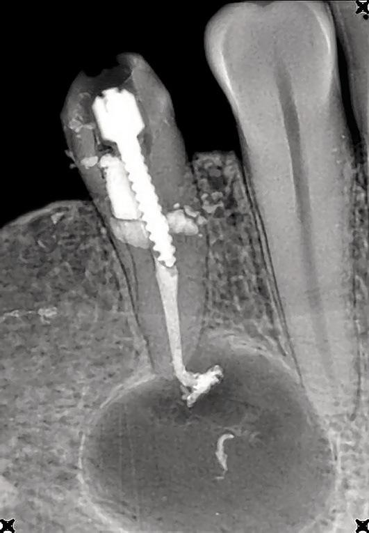 Рис. 4. Внутриротовой снимок зуба 44, радикулярная киста (К04.7), воспалительная ремоделяция перифокальной костной ткани отсутствует (пояснение в тексте).