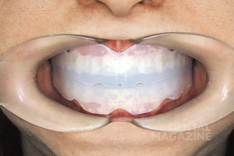 Рис. 1а. Подбор и наложение корректора: корректор в полости рта.