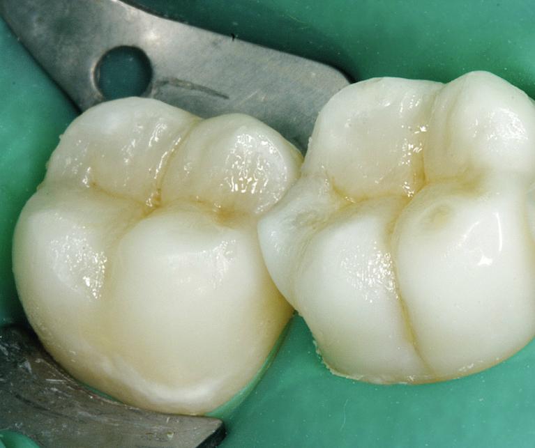 Восстановление коренного зуба