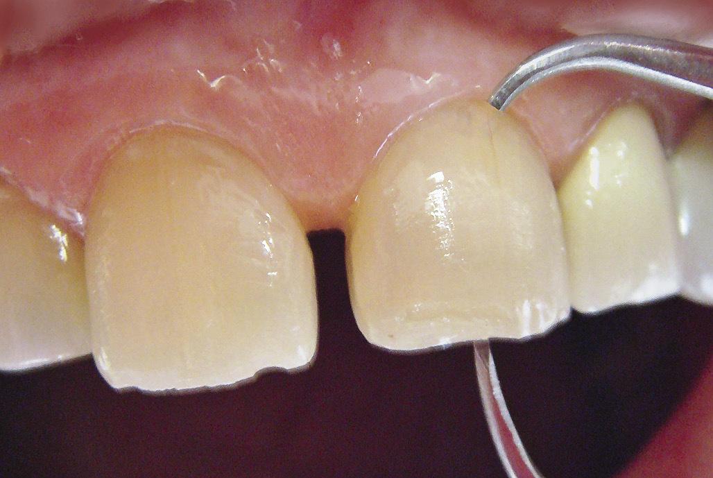 Рис. 10. Вертикальные размеры зубов измерены микрометром.