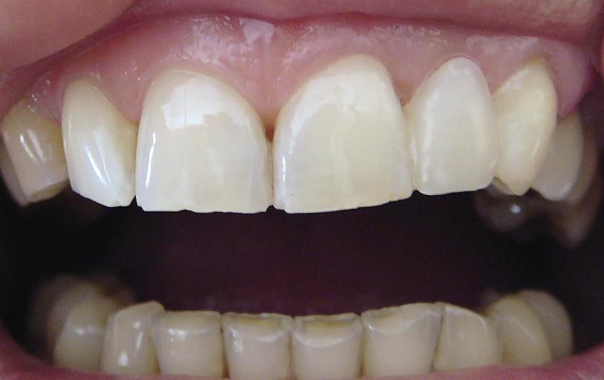 Рис. 10. Готовая работа: изготовлен адгезивный протез, воссоздан отсутствующий 22 зуб, изменены форма и положение 23 зуба.