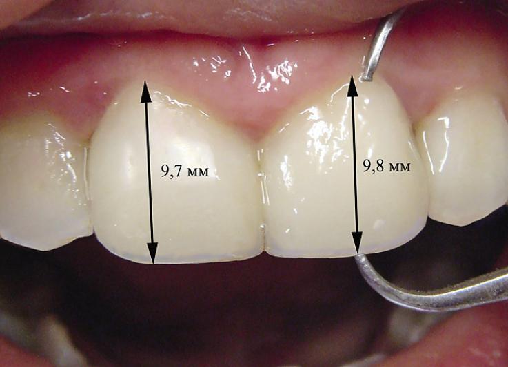 Рис. 15. Заключительная одонтометрия: вертикальный размер зубов 9,7 мм и 9,8 мм для правого и левого резцов соответственно.