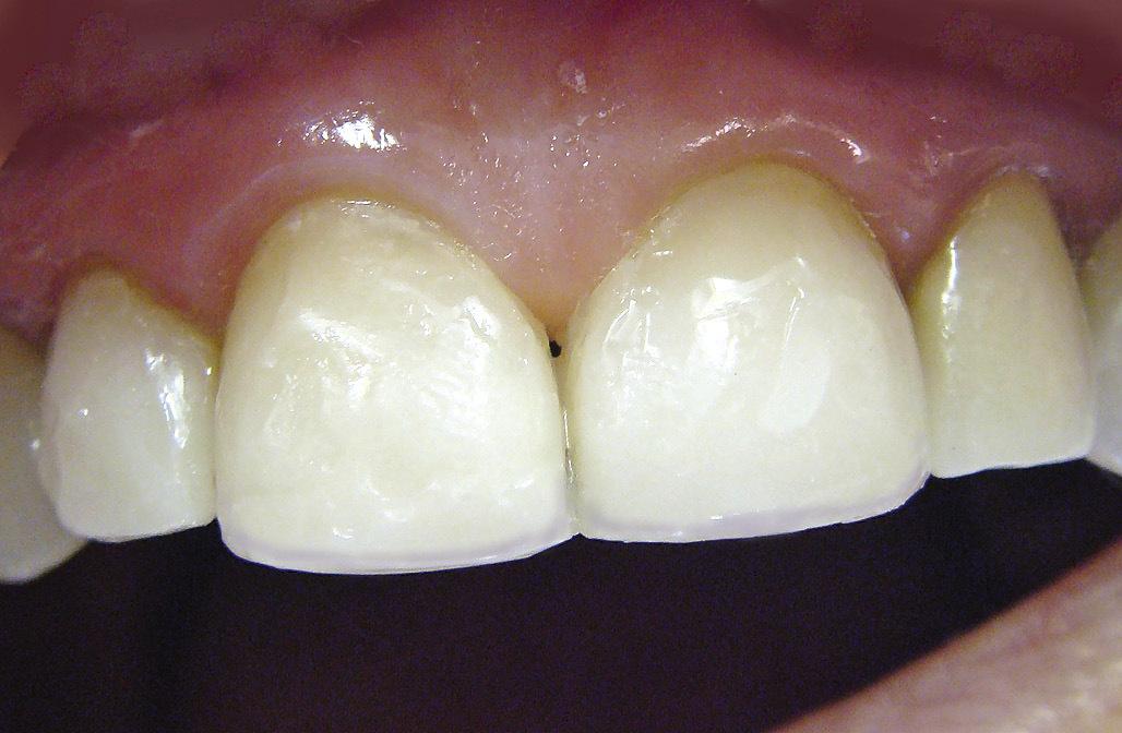 Рис. 16. Восстановлены контактные пункты между зубами.