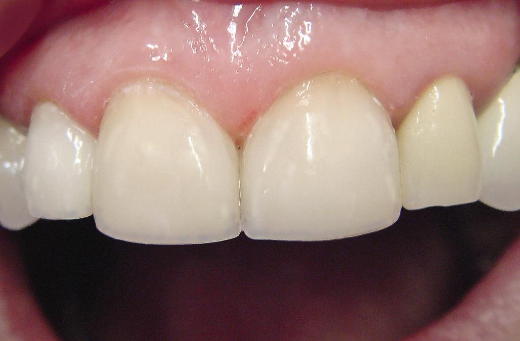 Рис. 17. Измерены вертикальные размеры зубов.