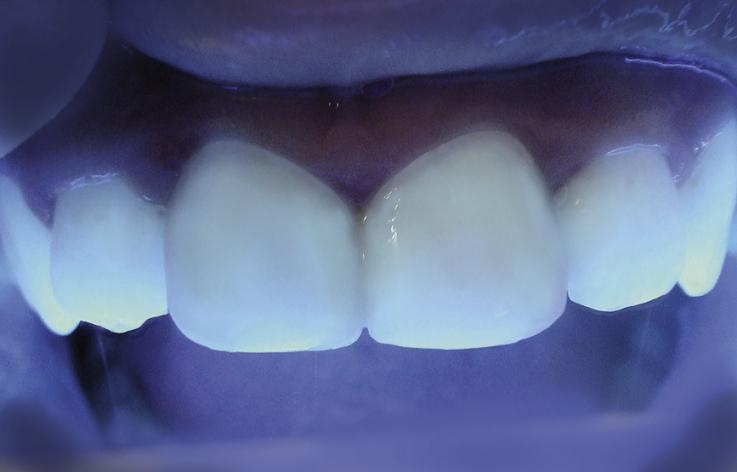 Рис. 17. При освещении резцов коротковолновым светом реставрации флуоресцируют так же, как твердые ткани зуба.