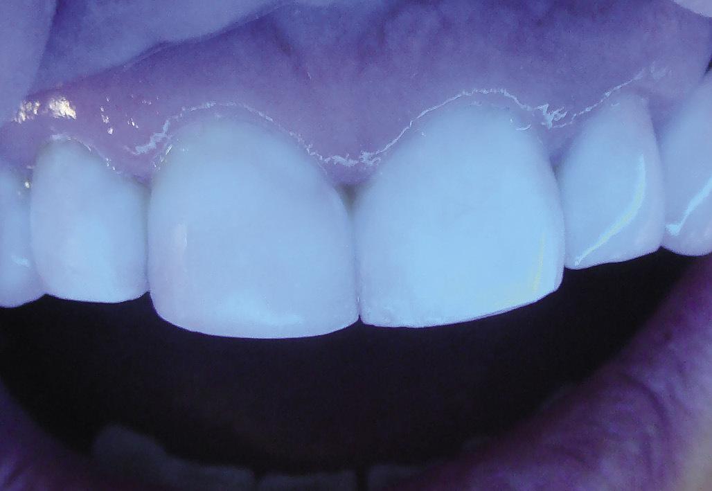 Рис. 18. При освещении резцов коротковолновым светом реставрации флуоресцируют так же, как твердые ткани зуба.