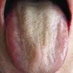Красные губы и язык