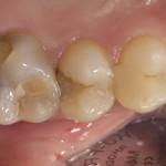 Sdr в стоматологии инструкция по применению