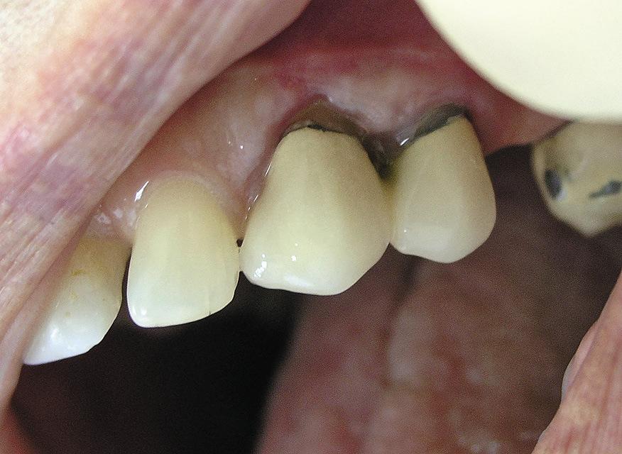 Рис. 1. Локальный пародонтит в области зубов 2.3, 2.4.