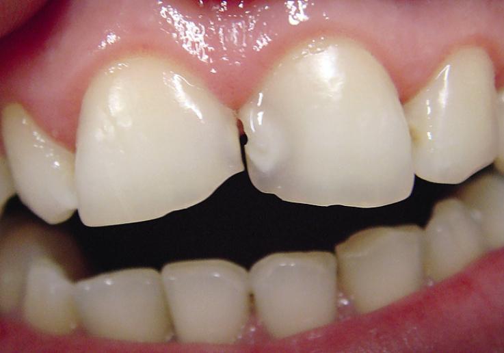 Рис. 1. Кариозные полости на мезиальной поверхности 1.1 и 2.1 зубов, неравномерная стираемость твердых тканей.