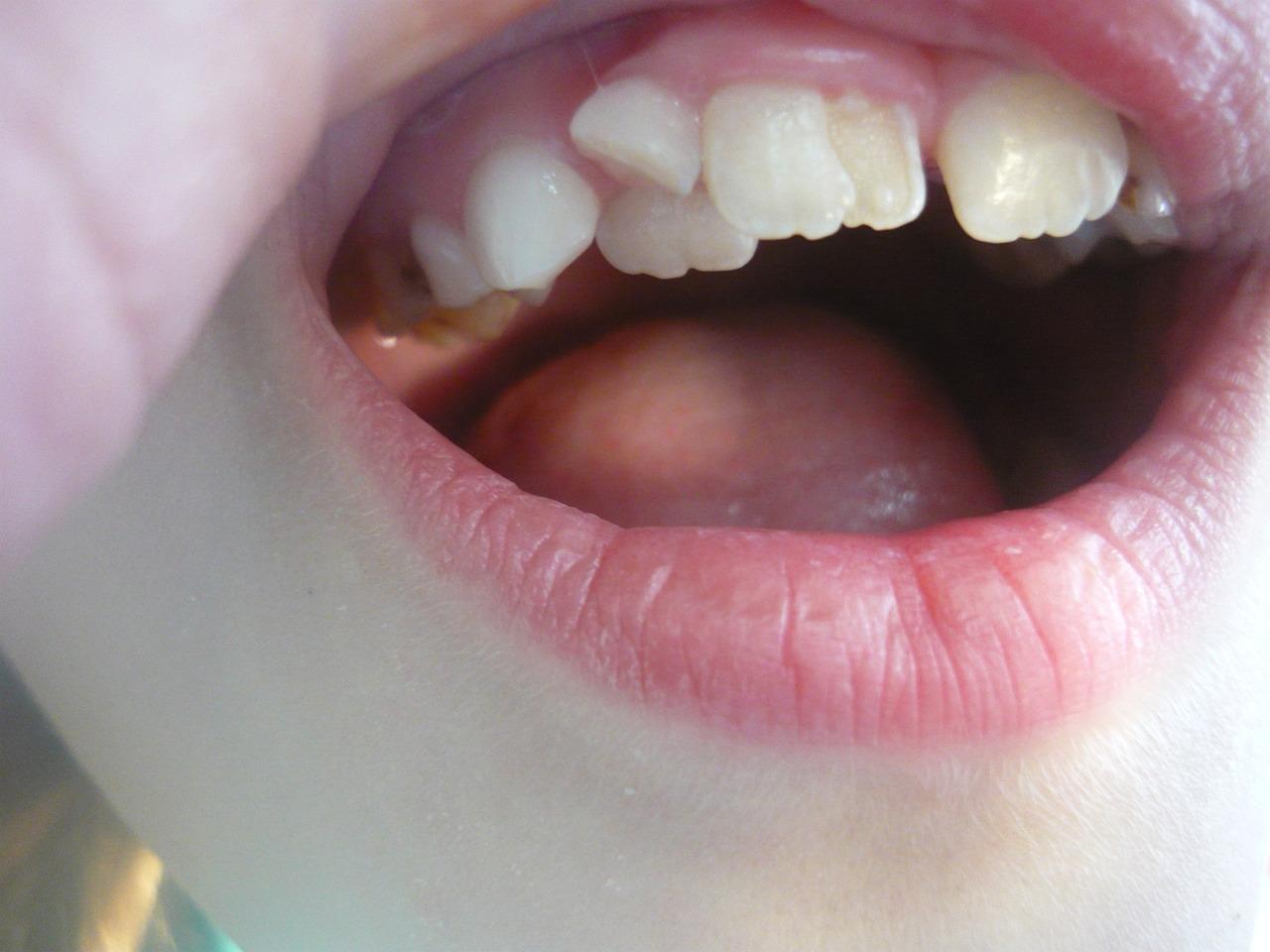 Рис. 1. Зуб 11 (аномалия структуры твердых тканей зуба) в стадии прорезывания у пациентки 7 лет.