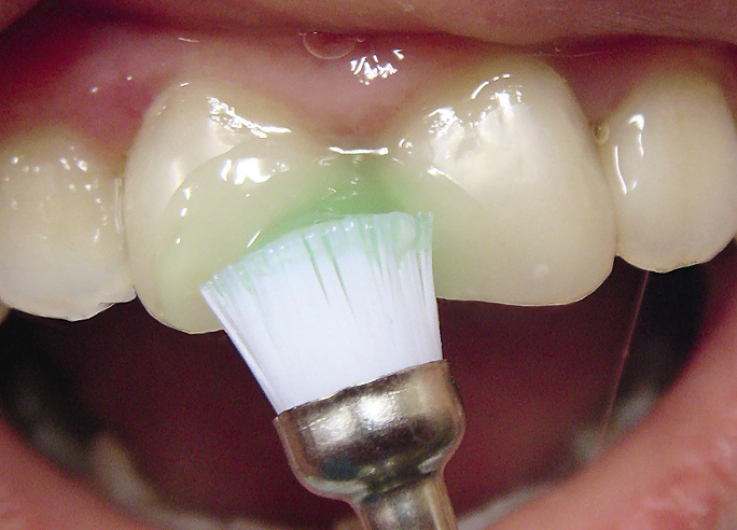 Рис. 2. Очищение зубов от налета.