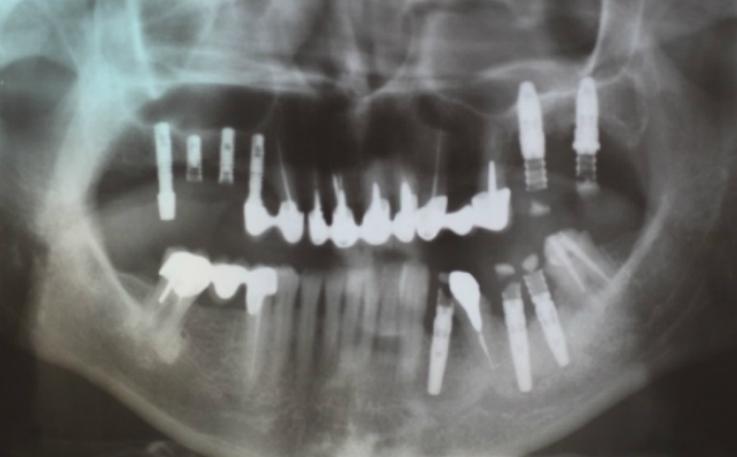 Рис. 2. Ортопантомограмма пациентки М.