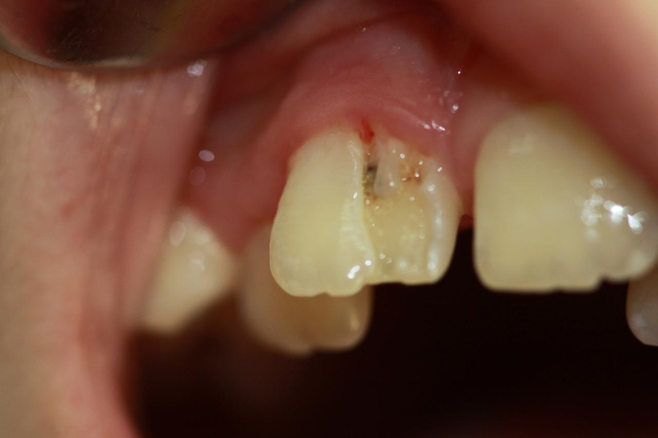 Рис. 2. Зуб 11 (аномалия структуры твердых тканей зуба) у пациентки 9 лет.