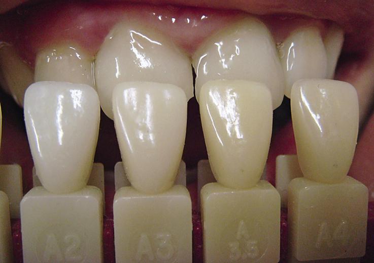Рис. 3. Подбор оттенков цвета зуба.