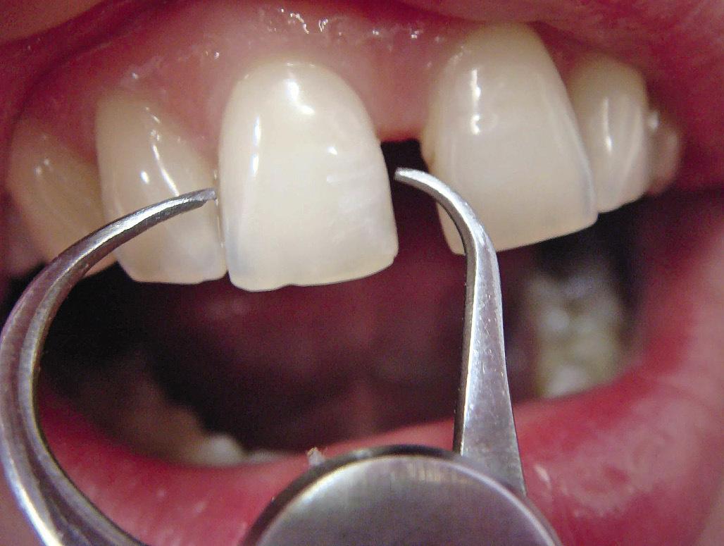 Рис. 4. Одонтометрия зубов.
