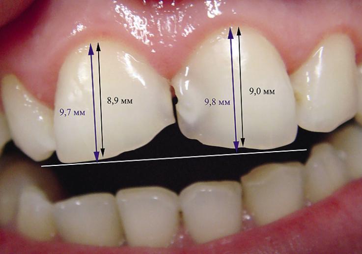 Рис. 4. Одонтометрия: ширина зуба в области экватора в 1.1 зубе 8,9 мм, в 2.1 зубе 9,0 мм. Планируемая высота зубов 9,7 мм у правого резца и 9,8 мм у левого.