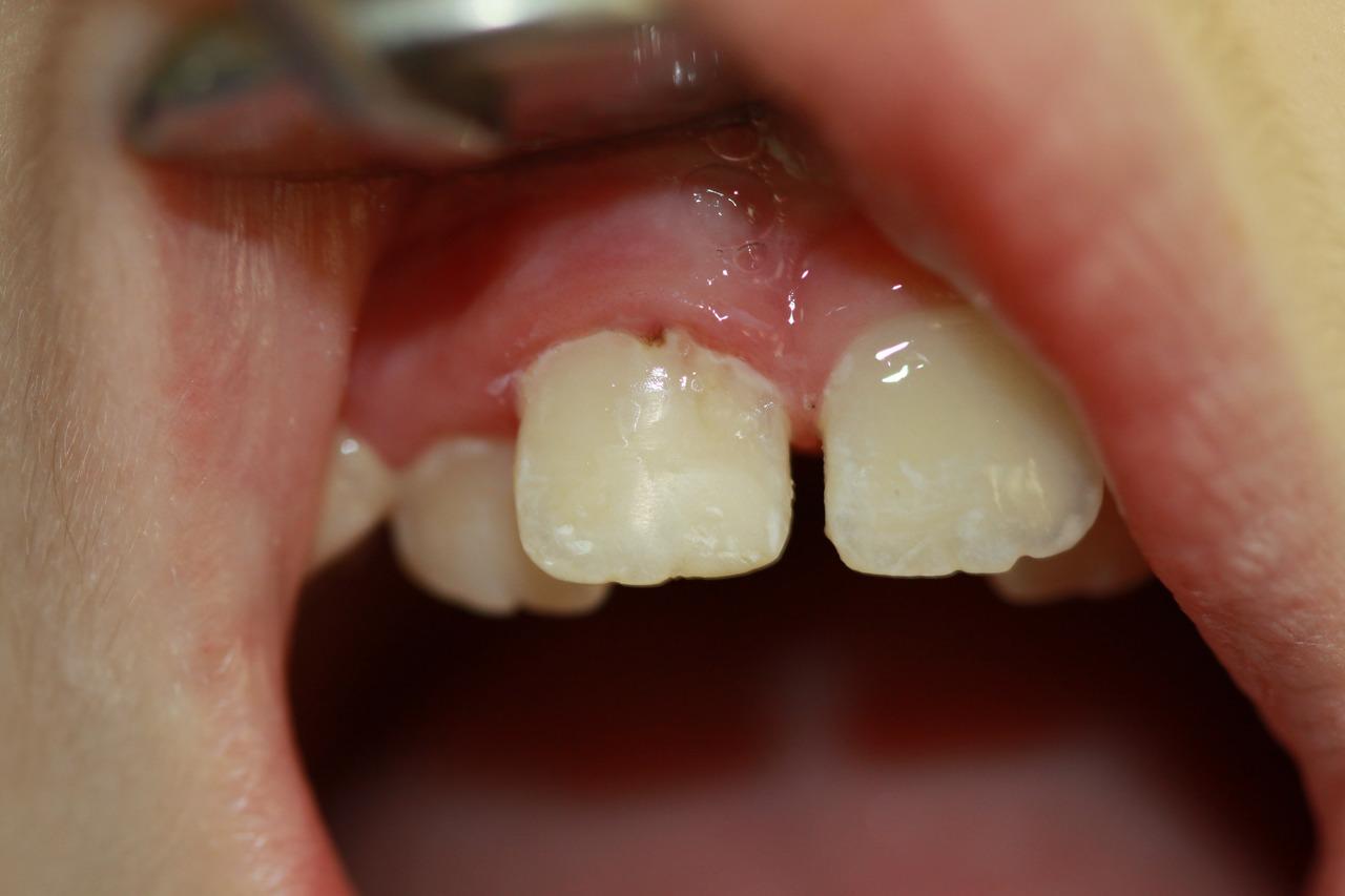 Рис. 4. Реставрация зуба 11 гибридным стеклоиономерным цементом Vitremer™ (3M ESPE) у пациентки 9 лет.