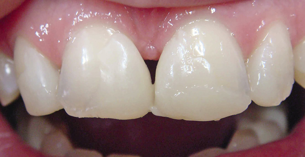 Рис. 5. Моделирование на зубах реставрации из «неходового» композита.