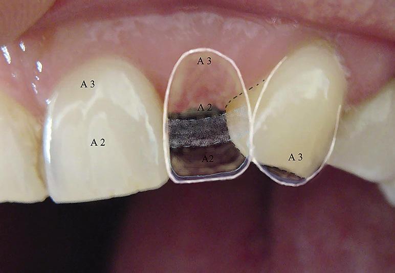 Рис. 4. На цветовой карте отмечены оттенки и степень прозрачности реставрируемых зубов.