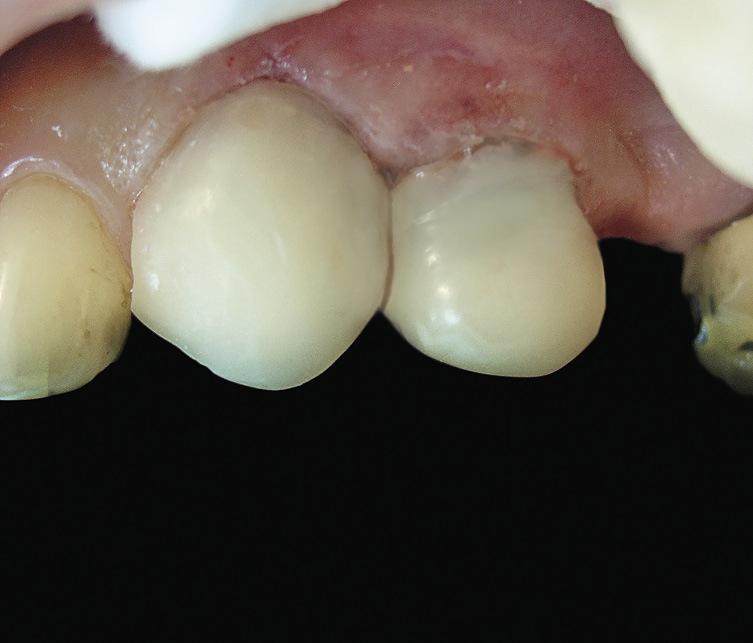 Рис. 6. Примерка и припасовка коронок в полости рта.