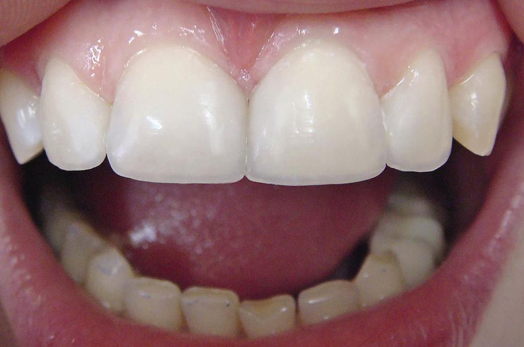 Рис. 8. Готовая работа: изменена форма зубов, устранены диастема и тремы, восстановлен режущий край, воссоздан тип прозрачности зубов.