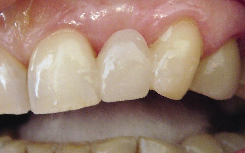 Рис. 8. Сформирован искусственный 22 зуб.