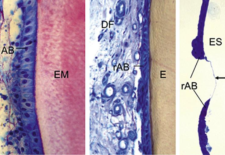 Рис. 5. На недекальцинированном препарате (шлифе) (а, б) и декальцинированном срезе с заливкой в LR-White (в) видна эмаль и соседние клетки. а) В области некоторых «зубов» отмечается образование незрелой эмали (розовое окрашивание матрицы эмали, (EM). Определяются эмалевые «призмы» («rods», палочки), покрытые амелобластами вытянутой формы (АВ). Наружный эмалевый эпителий, решетчатый слой (Stratum reticulare) и выраженный промежуточный слой (Stratum intermedium) отсутствуют. б) Большинство зубоподобных структур покрыты короткими редуцированными амелобластами, обнаруживается зрелая эмаль. Местами на редуцированных амелобластах рядом с зубным фоликулом отмечаются клетки промежуточного слоя (Stratum intermedium). Решетчатый слой (Stratum reticulare) и наружный эмалевый эпителий отсутствуют. в) Очаг прерывающегося слоя клеток редуцированных амелобластов, при этом на поверхности эмали имеются бесклеточные зоны. Поверхность эмали в этих областях покрыта тонким базофильным слоем.