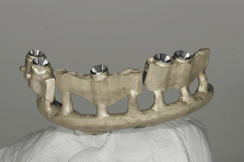 Рис. 33. Литье с помощью зуботехнического литейного сплава на основе золота «Argenco Bio Light».
