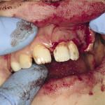 Лечение корня зуба все виды заболеваний корня зубов, симптомы и лечения