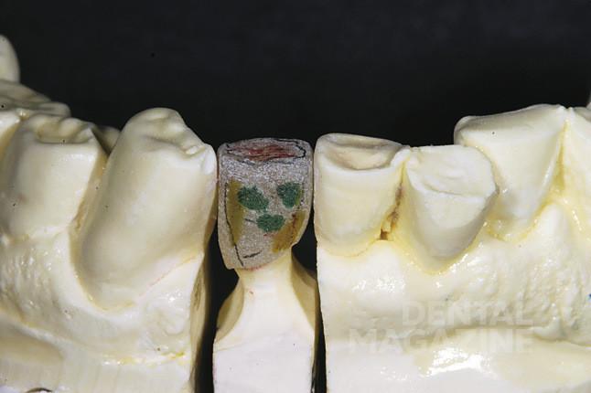 Рис. 23. Наносится краситель GC Initial Invivo (оттенок brown/orange), и выполняется первый обжиг. Затем с помощью маркера задается морфология зуба и текстура поверхности.