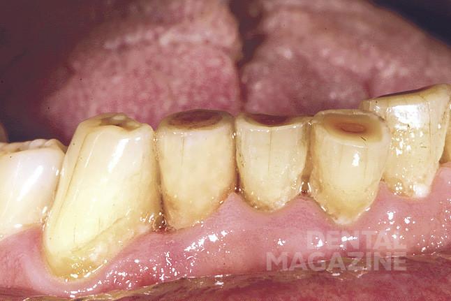 Рис. 26. Коронка зафиксирована в полости рта. Наблюдается полная цветовая интеграция, в том числе в области режущего края.
