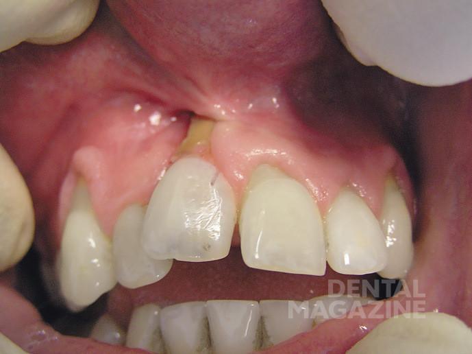 Обнажение ретинированного зуба