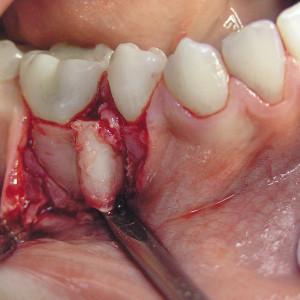 У меня болит зуб на корне гранулема