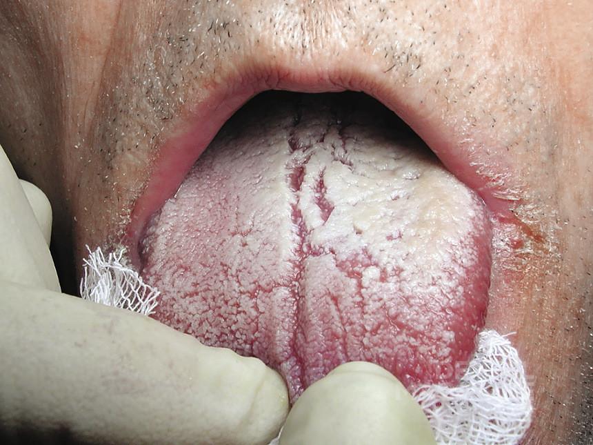 Рис. 2. Пациентка И., 69 лет. Хронический гиперпластический кандидоз полости рта. Кандидозная заеда.
