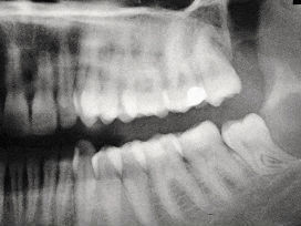 Воспаление слюнной железы: почему воспаляются слюнные железы и что делать
